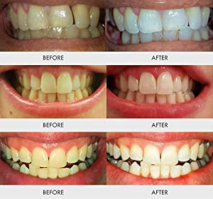 Best Teeth Whitening Kit Results